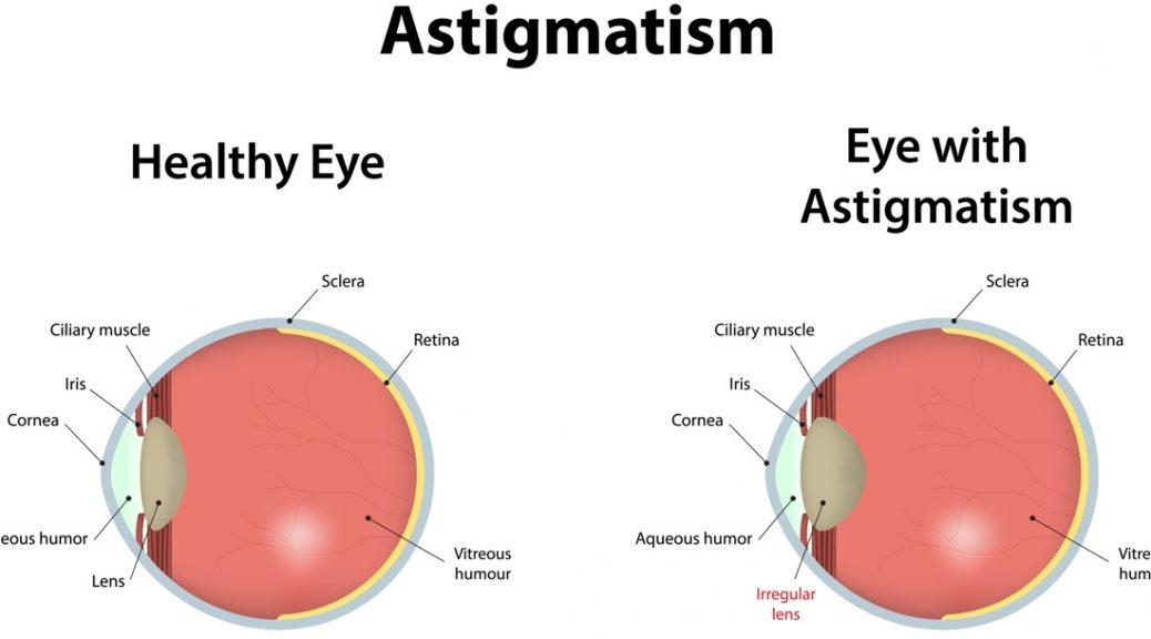 Intervento laser astigmatismo